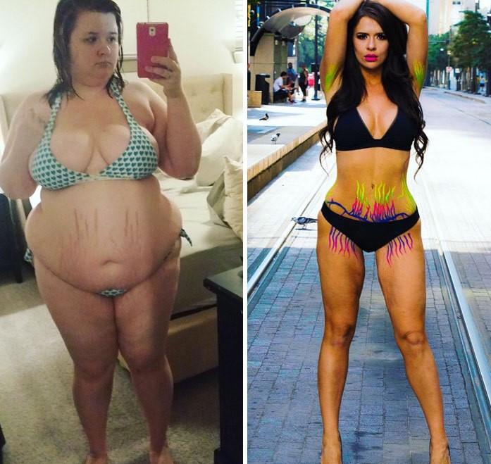 """Por que a cirurgia para perda de peso não é o """"caminho mais fácil"""" 9khuhb3pq1 5ybmr0x3mi file 1"""