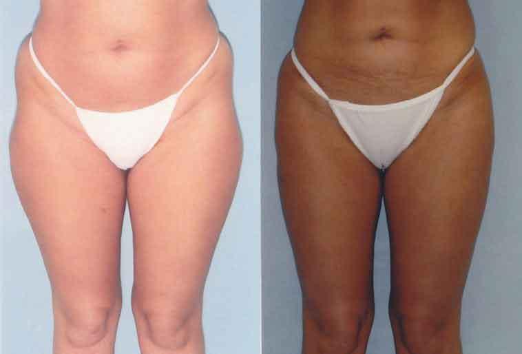 tumescent liposuction cost 3 1